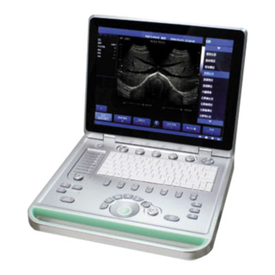 sonostar SS-8 portable ultrasound